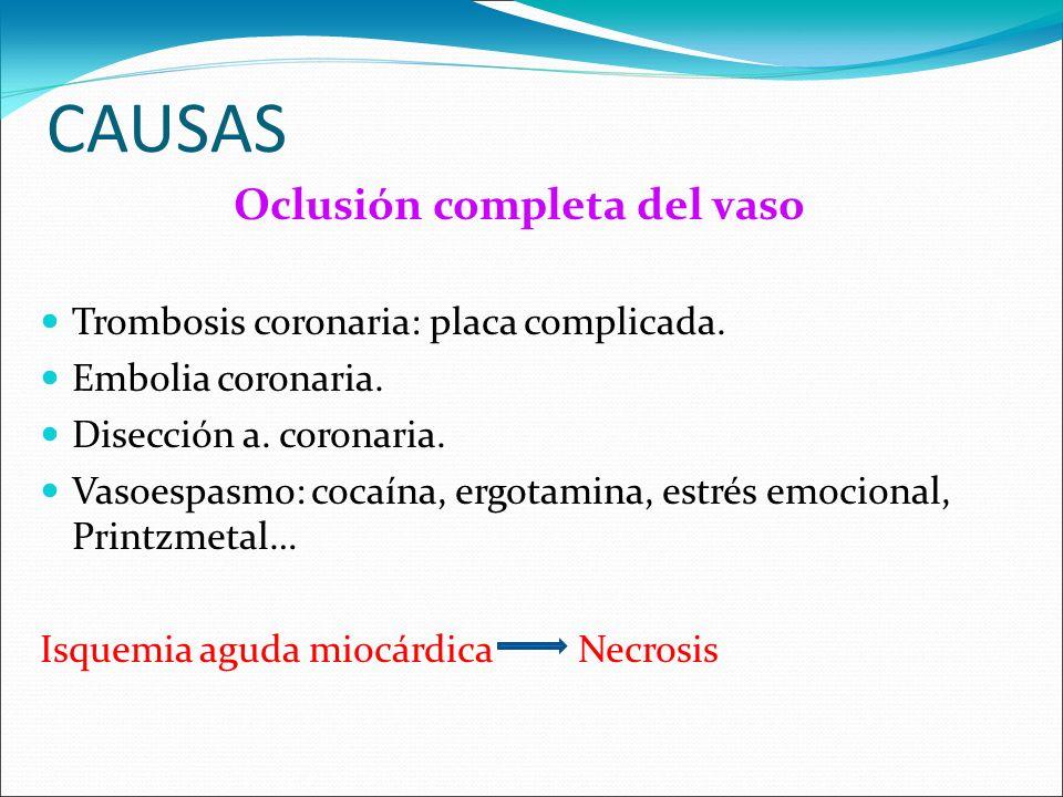 CAUSAS Oclusión completa del vaso Trombosis coronaria: placa complicada. Embolia coronaria. Disección a. coronaria. Vasoespasmo: cocaína, ergotamina,