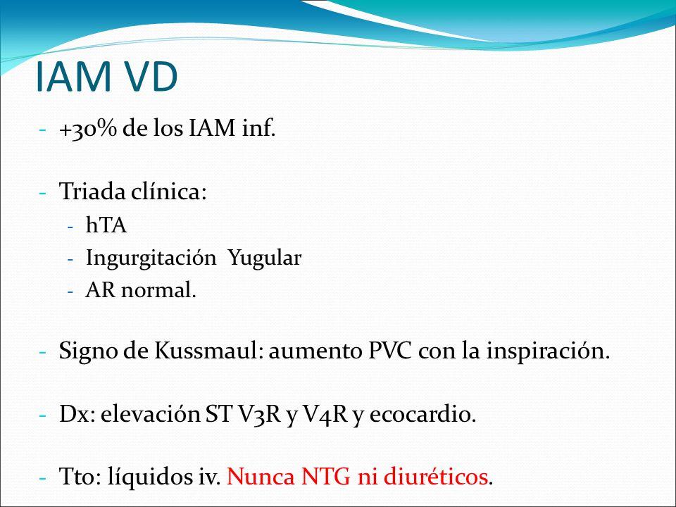 IAM VD - +30% de los IAM inf. - Triada clínica: - hTA - Ingurgitación Yugular - AR normal. - Signo de Kussmaul: aumento PVC con la inspiración. - Dx: