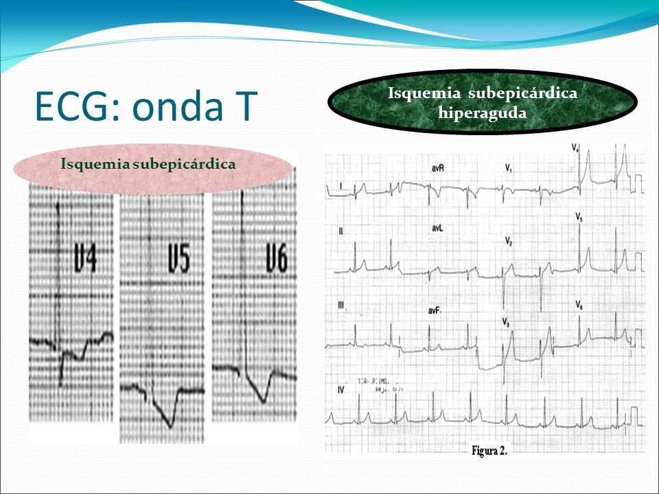 ECG: onda T Isquemia subepicárdica Isquemia subepicárdica hiperaguda
