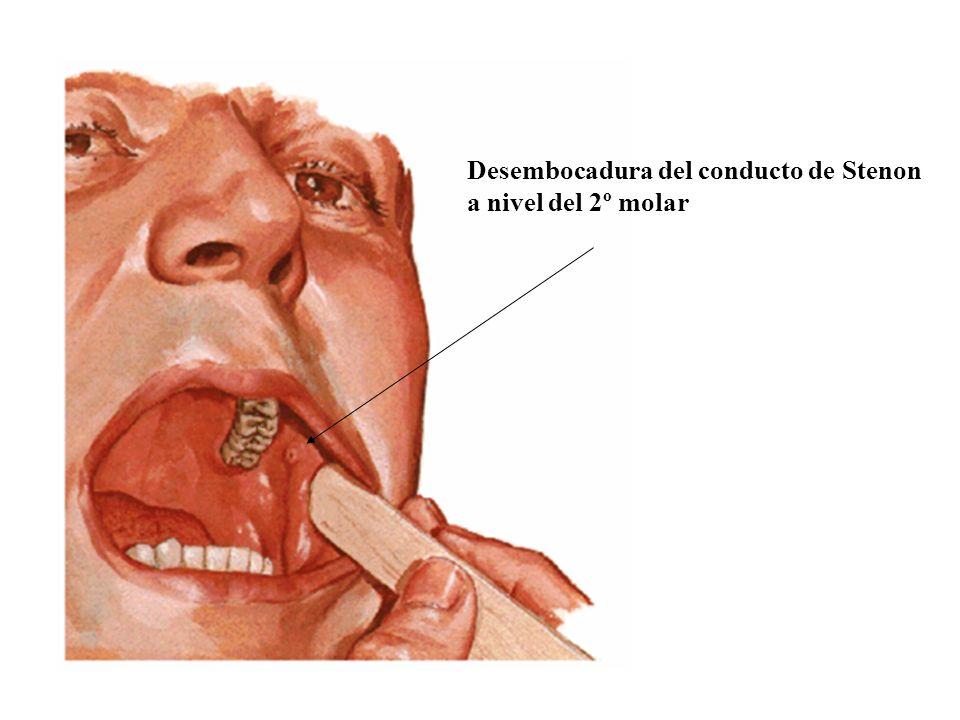 Desembocadura del conducto de Stenon a nivel del 2º molar