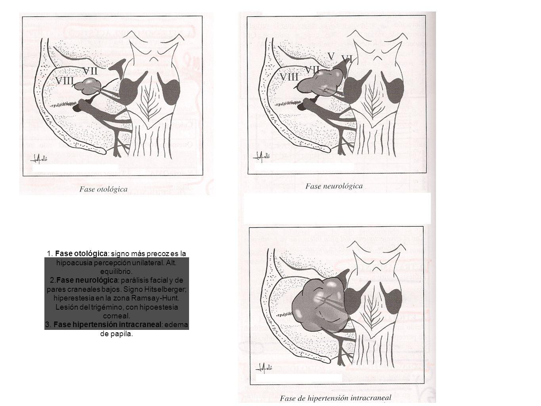 1. Fase otológica: signo más precoz es la hipoacusia percepción unilateral. Alt. equilibrio. 2.Fase neurológica: parálisis facial y de pares craneales