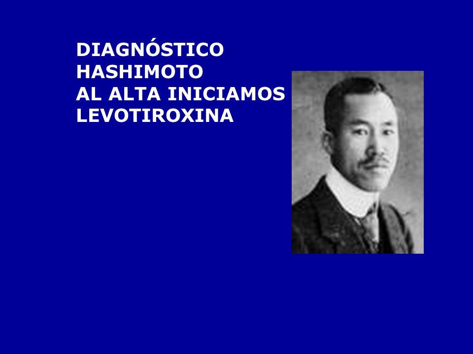 SOSPECHA: HIPOTIROIDISMO TSH ALTA T3 Y T4 BAJAS ANTICUERPOS TPO POSITIVOS COLESTEROLEMIA NORMAL CK ALTA EOSINOFILIA