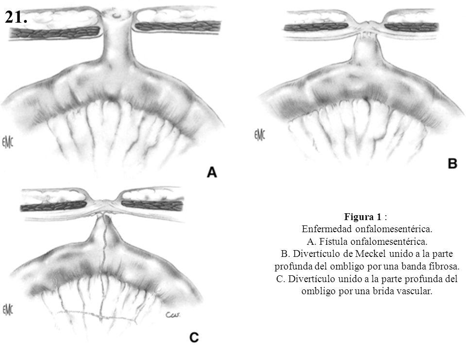 Figura 1 : Enfermedad onfalomesentérica. A. Fístula onfalomesentérica. B. Divertículo de Meckel unido a la parte profunda del ombligo por una banda fi
