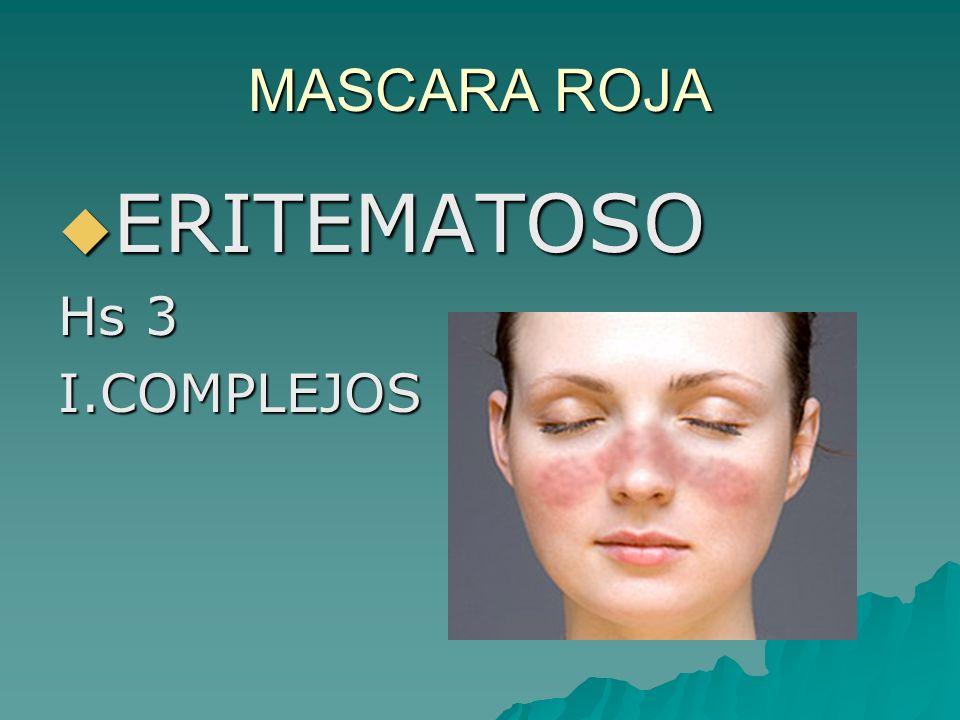 MASCARA ROJA ERITEMATOSO ERITEMATOSO Hs 3 I.COMPLEJOS
