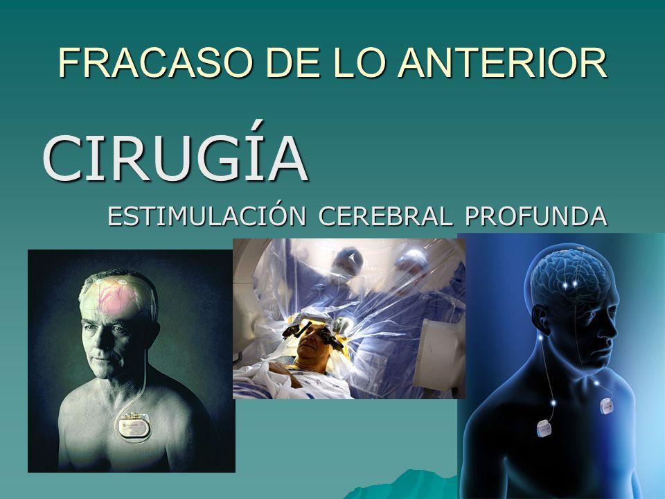 FRACASO DE LO ANTERIOR CIRUGÍA ESTIMULACIÓN CEREBRAL PROFUNDA