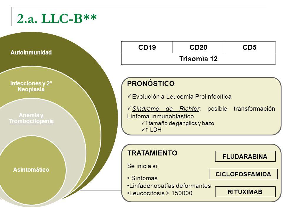 2.a. LLC-B** Autoinmunidad Infecciones y 2ª Neoplasia Anemia y Trombocitopenia Asintomático CD19CD20CD5 Trisomía 12 PRONÓSTICO Evolución a Leucemia Pr