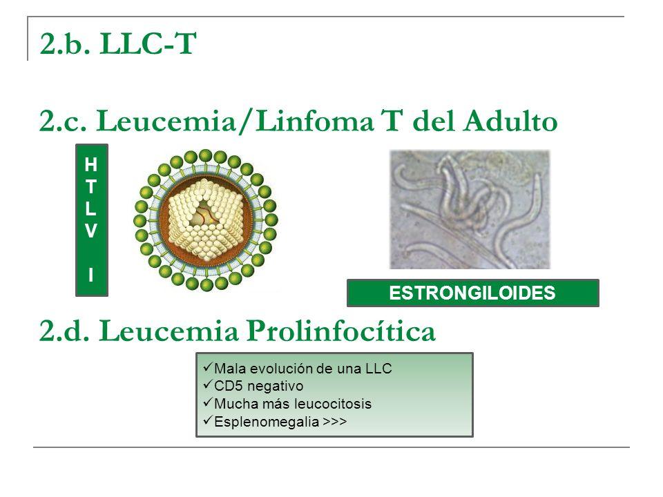 2.b. LLC-T 2.c. Leucemia/Linfoma T del Adulto 2.d. Leucemia Prolinfocítica HTLVIHTLVI ESTRONGILOIDES Mala evolución de una LLC CD5 negativo Mucha más