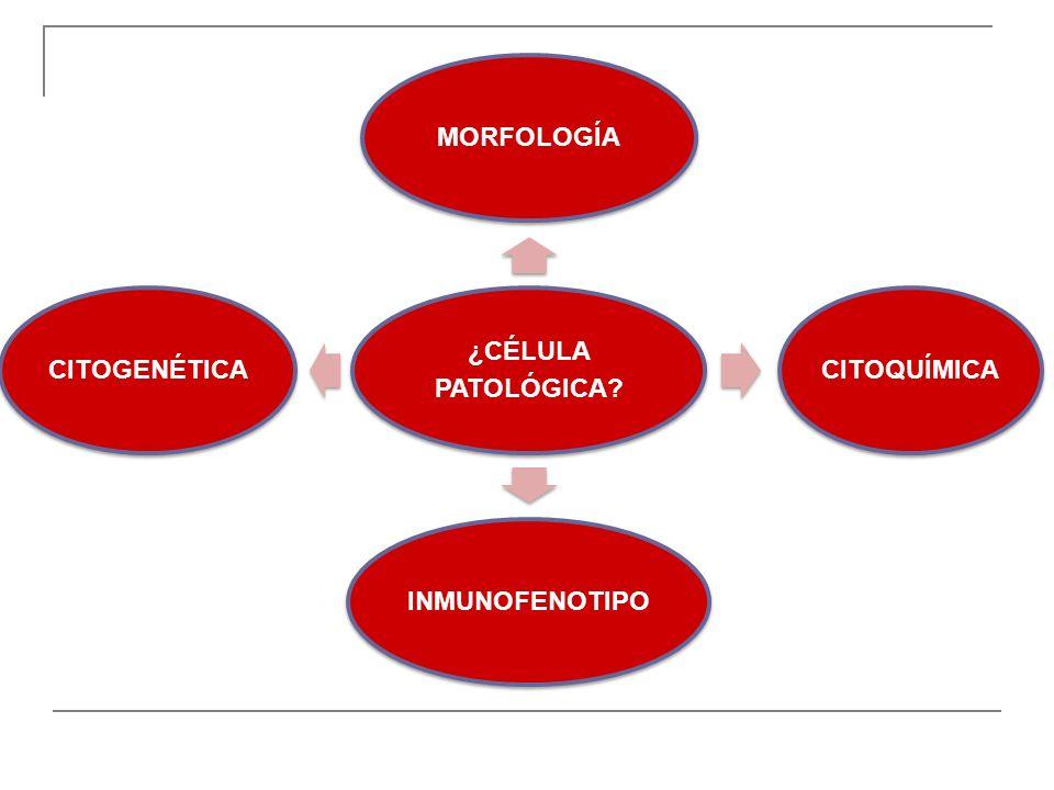 1.a.L. Aguda Linfoblástica.