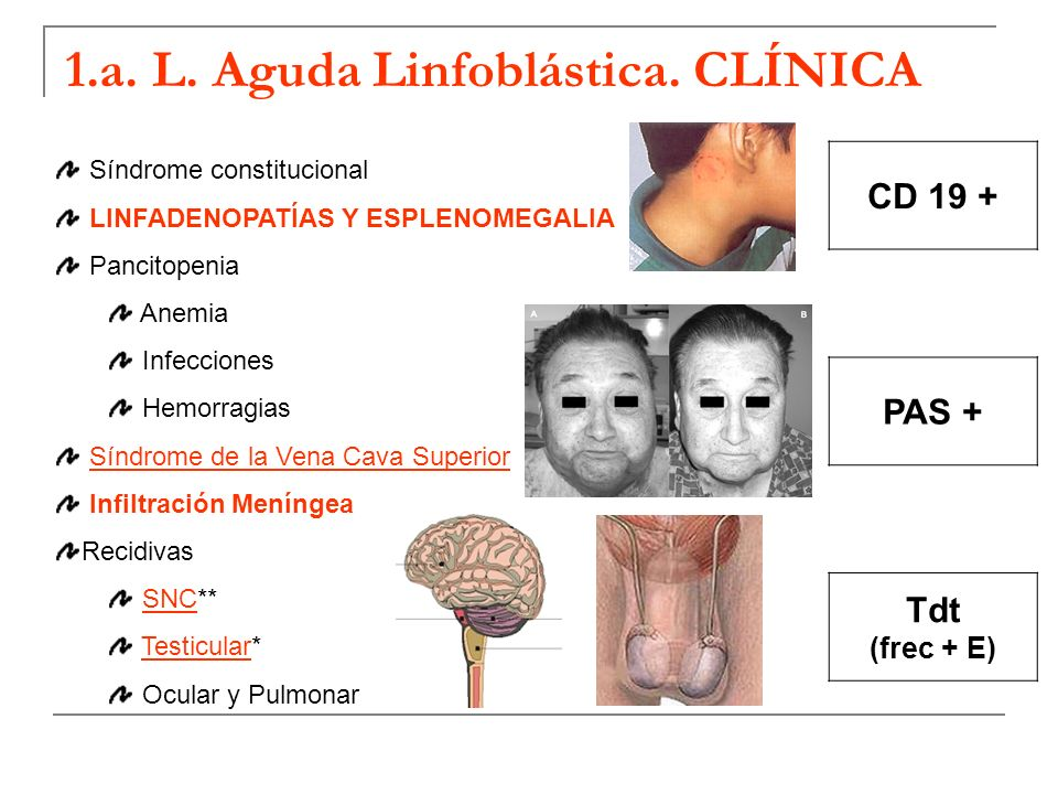 1.a. L. Aguda Linfoblástica. CLÍNICA Síndrome constitucional LINFADENOPATÍAS Y ESPLENOMEGALIA Pancitopenia Anemia Infecciones Hemorragias Síndrome de