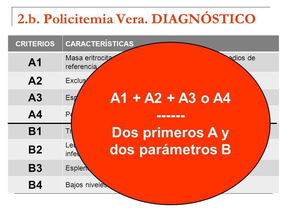 2.b. Policitemia Vera. DIAGNÓSTICO CRITERIOSCARACTERÍSTICAS A1 Masa eritrocitaria 25% por encima de los valores medios de referencia A2 Exclusión de c