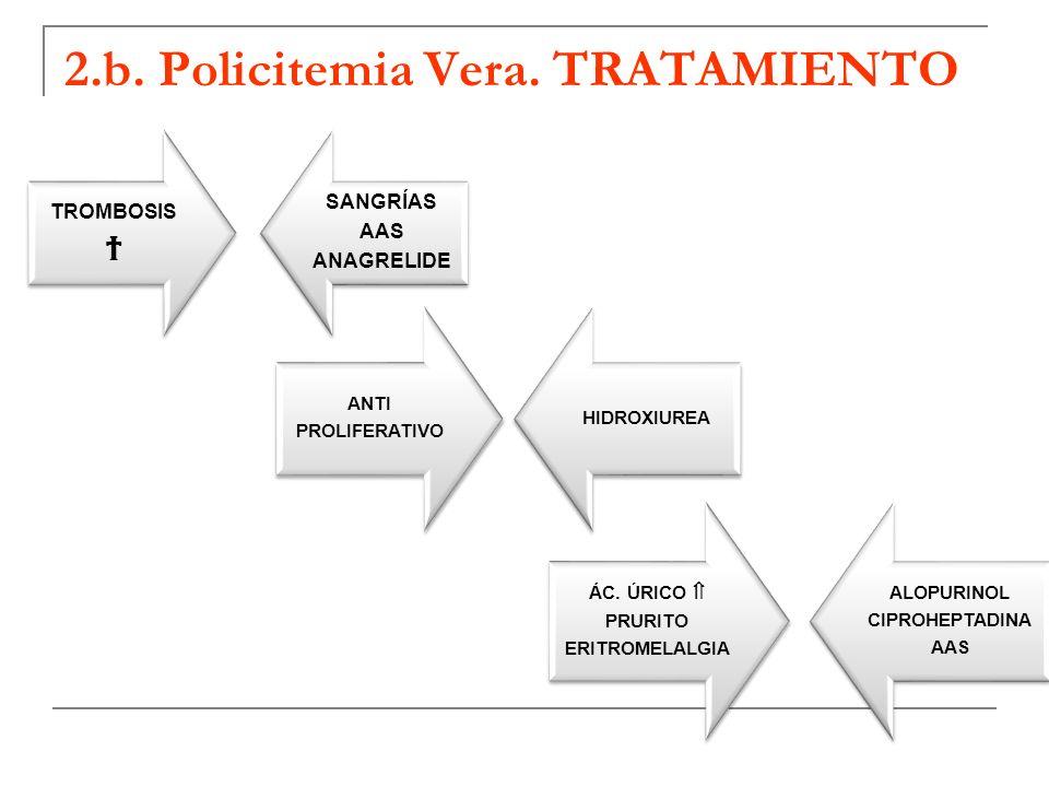 2.b. Policitemia Vera. TRATAMIENTO TROMBOSIS SANGRÍAS AAS ANAGRELIDE ANTI PROLIFERATIVO HIDROXIUREA ÁC. ÚRICO PRURITO ERITROMELALGIA ALOPURINOL CIPROH