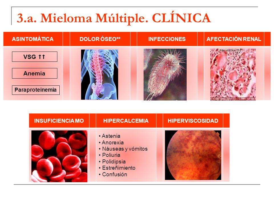 3.a. Mieloma Múltiple. CLÍNICA ASINTOMÁTICADOLOR ÓSEO**INFECCIONESAFECTACIÓN RENAL VSG Anemia Paraproteinemia INSUFICIENCIA MOHIPERCALCEMIAHIPERVISCOS