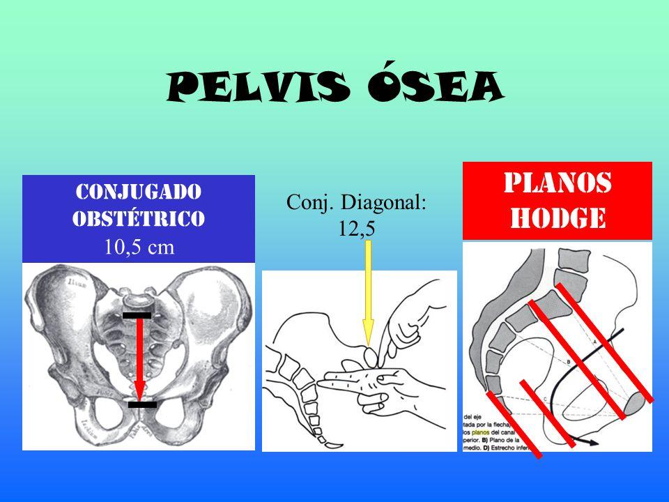 PELVIS ÓSEA Conjugado Obstétrico 10,5 cm Conj. Diagonal: 12,5 PLANOS HODGE