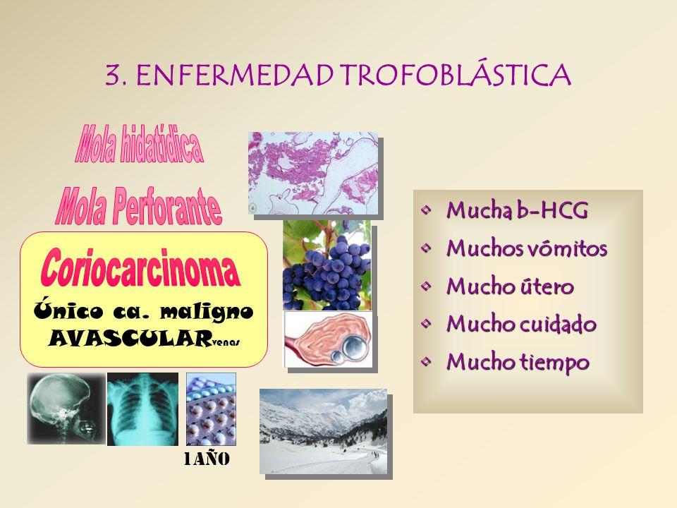 3. ENFERMEDAD TROFOBLÁSTICA Único ca. maligno AVASCULAR venas 1año Mucha b-HCGMucha b-HCG Muchos vómitosMuchos vómitos Mucho úteroMucho útero Mucho cu