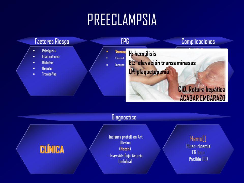 PREECLAMPSIA Factores RiesgoFPGComplicaciones Primigesta Edad extrema Diabetes Gemelar Trombofilia Vasoespasmo Vasoespasmo >TirosinK Inmune antipadre