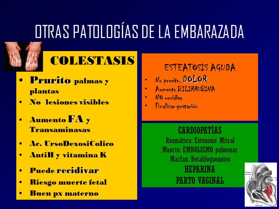 OTRAS PATOLOGÍAS DE LA EMBARAZADA COLESTASIS PruritoPrurito palmas y plantas No lesiones visibles FAAumento FA y Transaminasas Ac. UrsoDexosiColico An