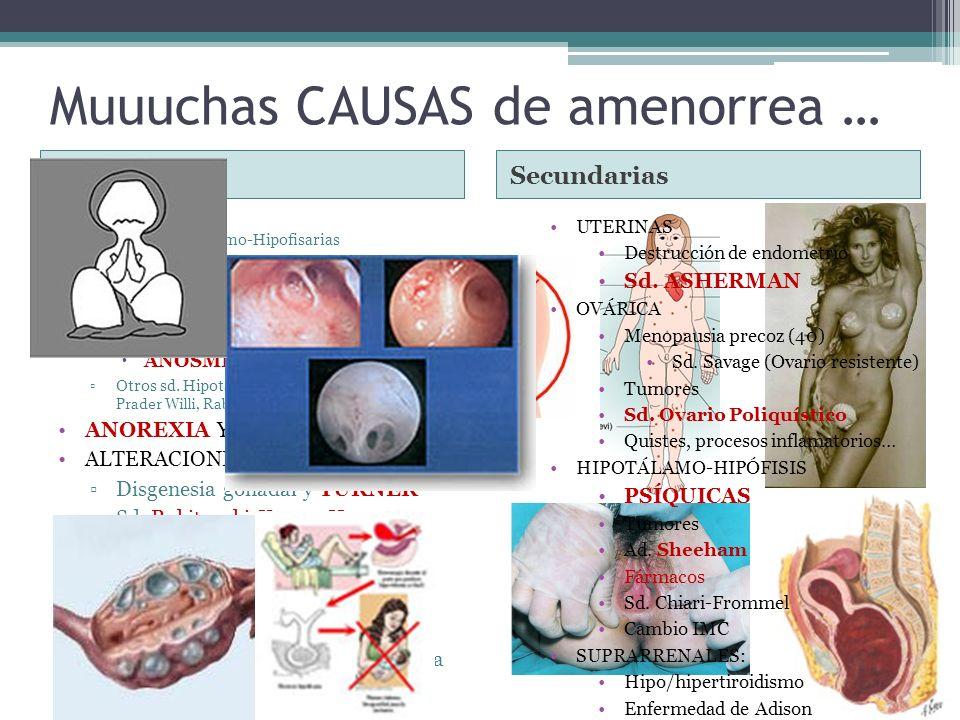 Muuuchas CAUSAS de amenorrea … PrimariaSecundarias CENTRALES Insuf. Hipotalamo-Hipofisarias Sd. Laurence-Moon-Bield Sd. Froelich (tumores) Insuf.espec