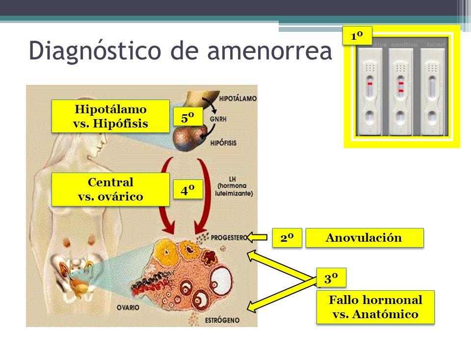 Diagnóstico de amenorrea 1º 2º Fallo hormonal vs. Anatómico Anovulación 4º 3º Central vs. ovárico Central vs. ovárico 5º Hipotálamo vs. Hipófisis Hipo