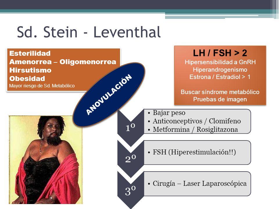 Sd. Stein - Leventhal Esterilidad Amenorrea – Oligomenorrea Hirsutismo Obesidad Mayor riesgo de Sd. Metabólico Esterilidad Amenorrea – Oligomenorrea H
