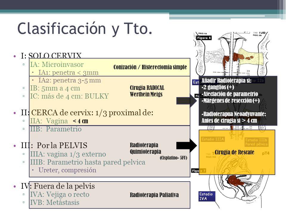 Clasificación y Tto. I: SOLO CERVIX IA: Microinvasor IA1: penetra < 3mm IA2: penetra 3-5 mm IB: 5mm a 4 cm IC: más de 4 cm: BULKY II: CERCA de cervix: