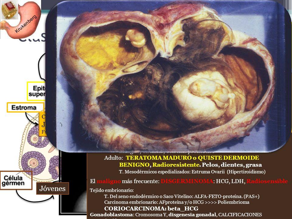 Clasificación de TUMORES Ováricos Los más fctes (mesotelio celómico) 1º: Serosos–pSamoma–unilocular- Maligniza 2º: Mucinosos - seudoMixoma-Multilocula