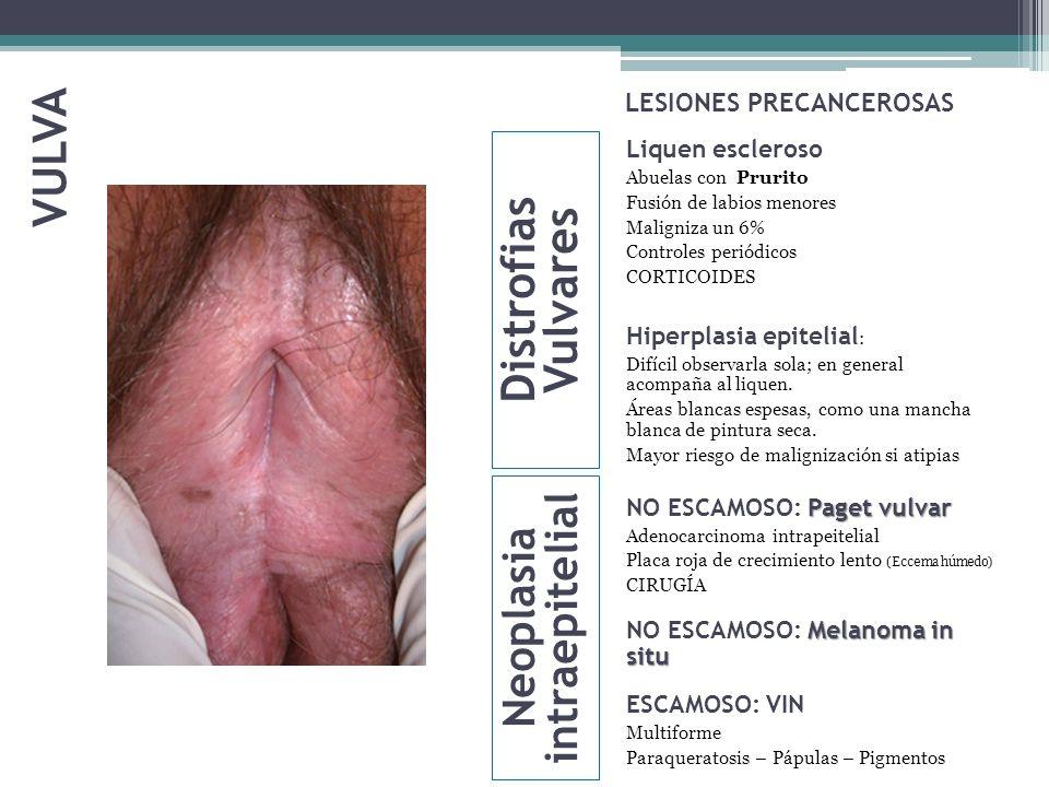 LESIONES PRECANCEROSAS Liquen escleroso Abuelas con Prurito Fusión de labios menores Maligniza un 6% Controles periódicos CORTICOIDES Hiperplasia epit