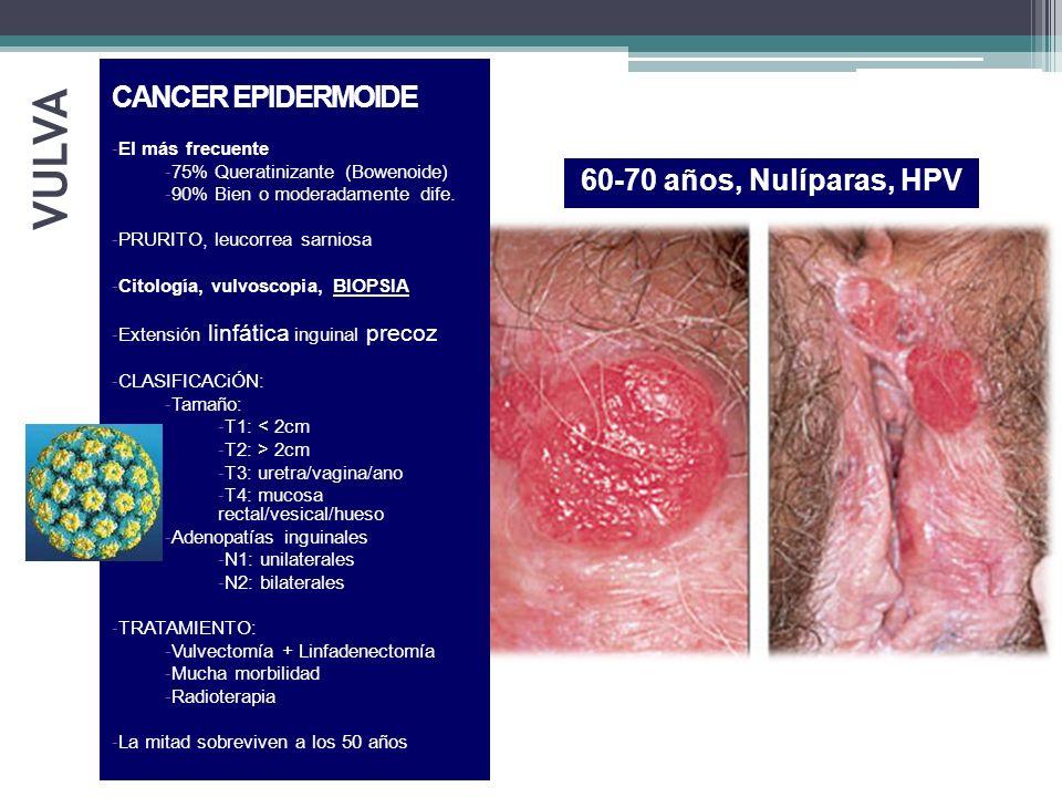 VULVA 60-70 años, Nulíparas, HPV LESIONES PRECANCEROSAS CANCER EPIDERMOIDE -El más frecuente -75% Queratinizante (Bowenoide) -90% Bien o moderadamente