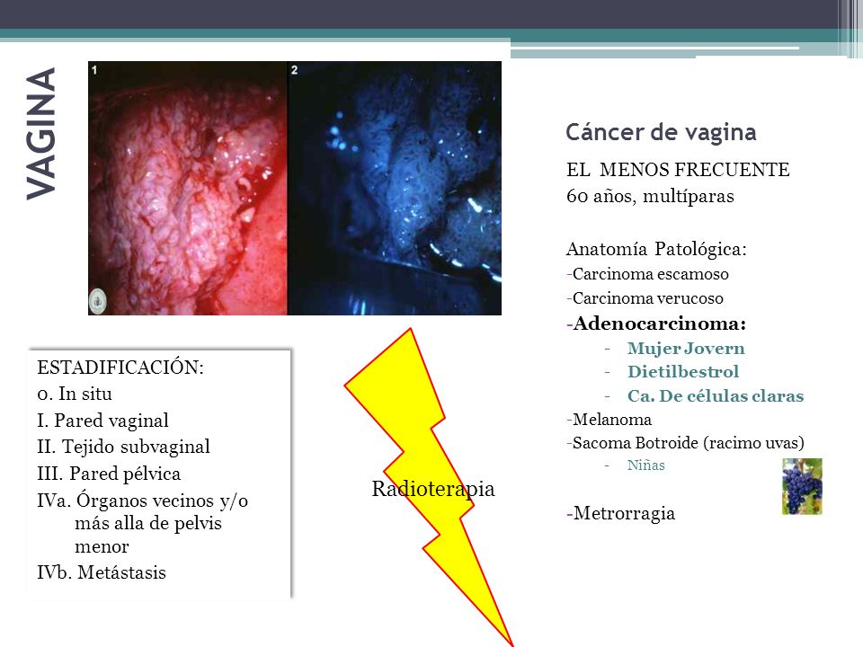 Cáncer de vagina EL MENOS FRECUENTE 60 años, multíparas Anatomía Patológica: -Carcinoma escamoso -Carcinoma verucoso -Adenocarcinoma: -Mujer Jovern -D