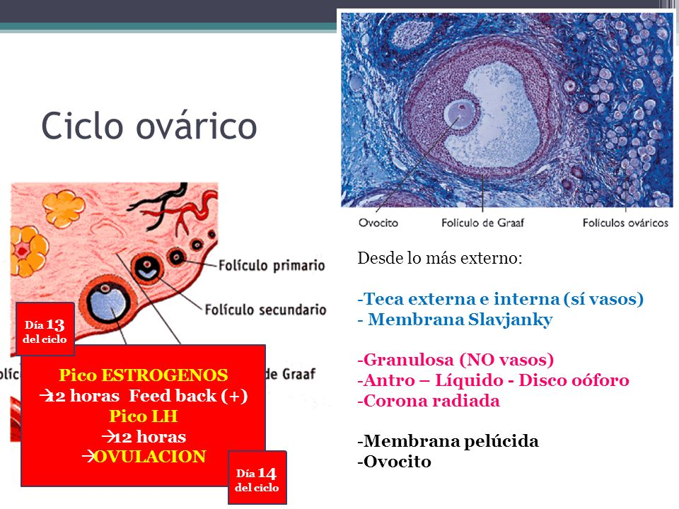 Inflamación causada por una infección del tracto genital superior, incluyendo combinaciones de endometritis, salpingitis, ooforitis, parametritis, abscesos tubo- ováricos y pelviperitonitis.