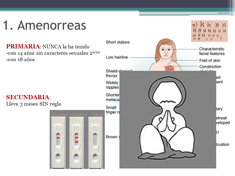 1. Amenorreas PRIMARIA : NUNCA la ha tenido -con 14 años sin caracteres sexuales 2 arios -con 18 años SECUNDARIA : Lleva 3 meses SIN regla