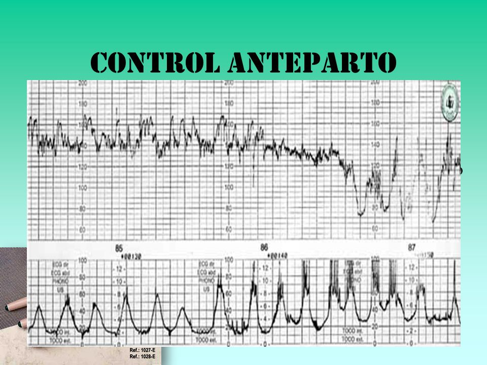 Control anteparto Test No Estresante: No (+)Contracciones 160 110 Variabilidad: 15-20 Reactividad: 15lpm 15seg, 3-4/10min Silente / Sinusoide / Saltat