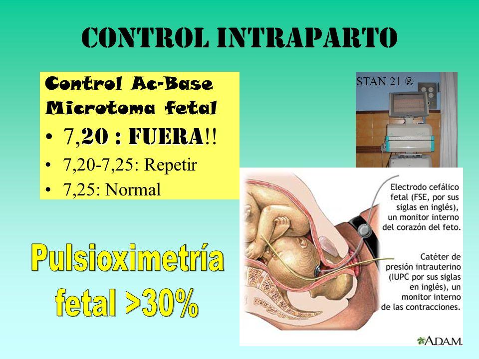 Control intraparto Control Ac-Base Microtoma fetal 20 : FUERA7, 20 : FUERA !! 7,20-7,25: Repetir 7,25: Normal STAN 21 ®