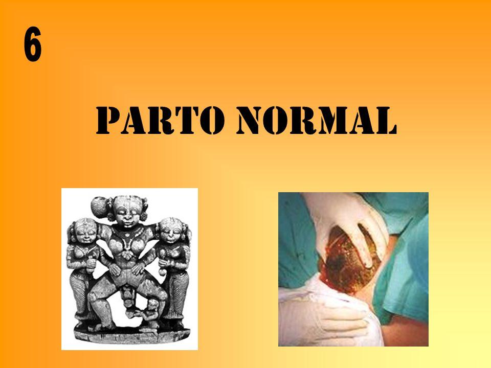 PARTO NORMAL