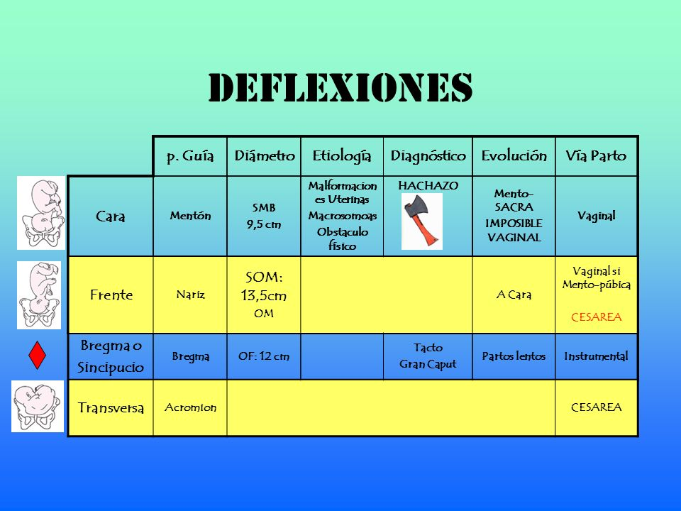 DEFLEXIONES p. GuíaDiámetroEtiologíaDiagnósticoEvoluciónVía Parto Cara Mentón SMB 9,5 cm Malformacion es Uterinas Macrosomoas Obstaculo físico HACHAZO