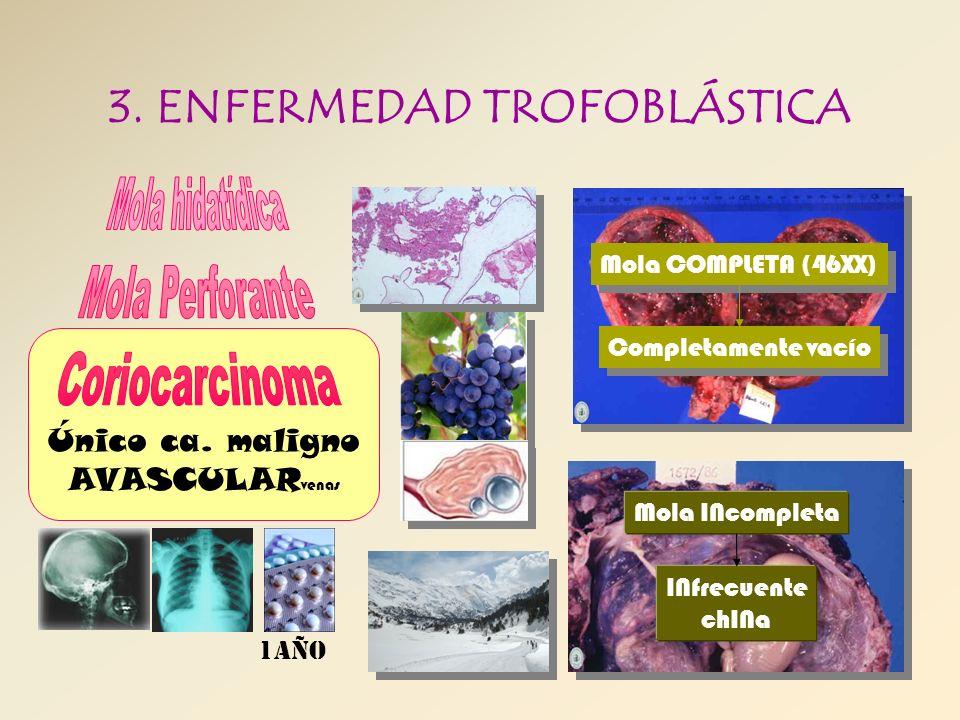 3. ENFERMEDAD TROFOBLÁSTICA Único ca. maligno AVASCULAR venas Mola COMPLETA (46XX) Completamente vacío Mola INcompleta INfrecuente chINa 1año