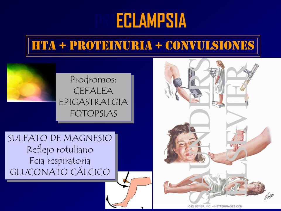 PRE ECLAMPSIA HTA + Proteinuria + Convulsiones Prodromos: CEFALEA EPIGASTRALGIA FOTOPSIAS Prodromos: CEFALEA EPIGASTRALGIA FOTOPSIAS SULFATO DE MAGNES