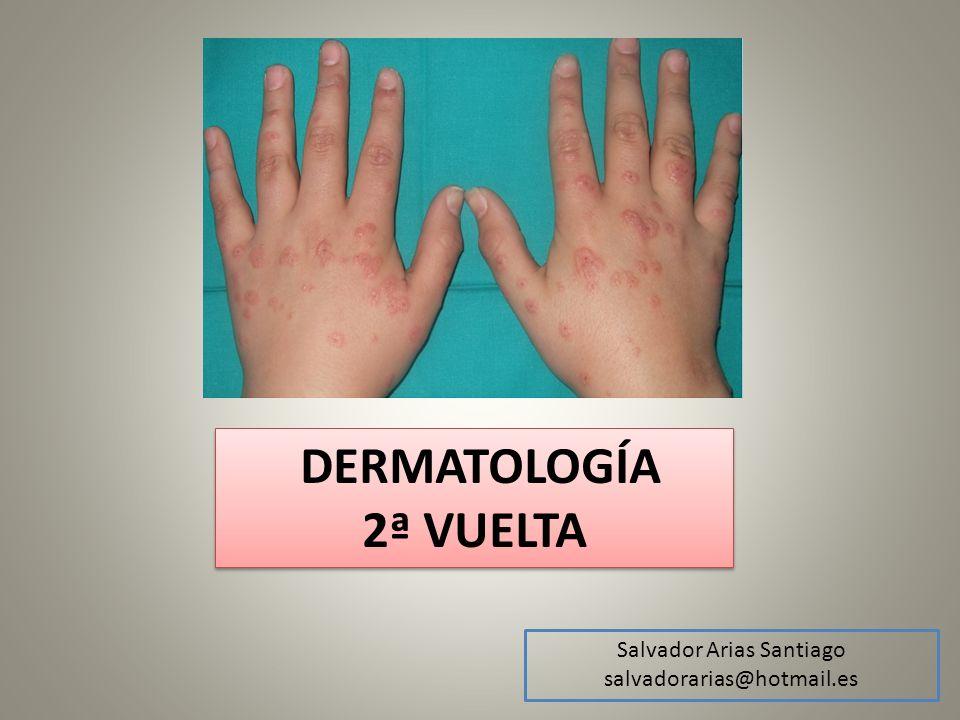 Paniculitis ERITEMA INDURADO DE BAZIN -Nódulos eritematosos dolorosos en cara posterior de las piernas -Se ulceran y dejan cicatriz atrófica -Mujeres 30-50 años -Bazin: Asociado a TBC (hipersensibilidad, PCR+ cultivo -) -Vasculitis nodulillar: No asociado a TBC -Bx Paniculitis lobulillar con vasculitis + granulomas tuberculoides -Tratamientos -AINEs -Yoduro postásico -Triple terapia si asocia a TBC