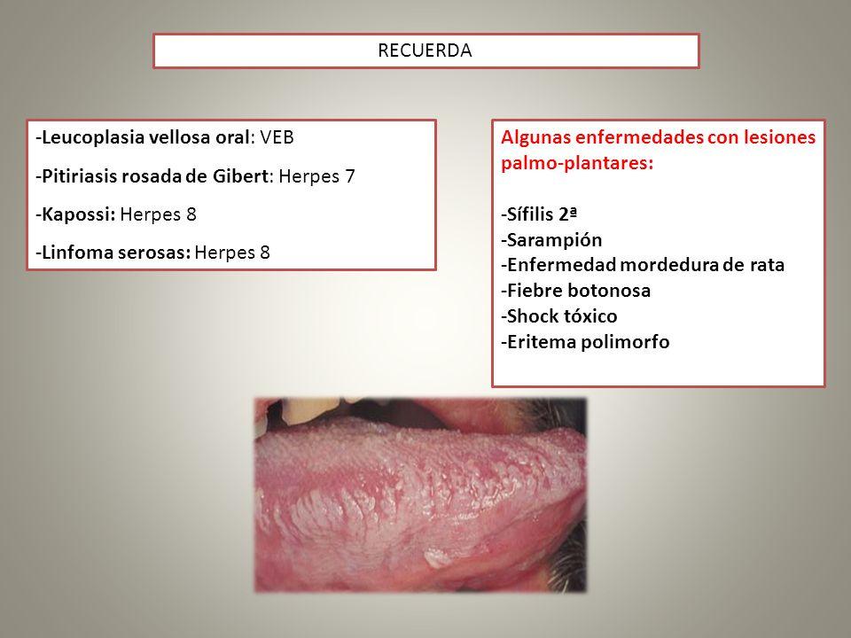 -Leucoplasia vellosa oral: VEB -Pitiriasis rosada de Gibert: Herpes 7 -Kapossi: Herpes 8 -Linfoma serosas: Herpes 8 RECUERDA Algunas enfermedades con