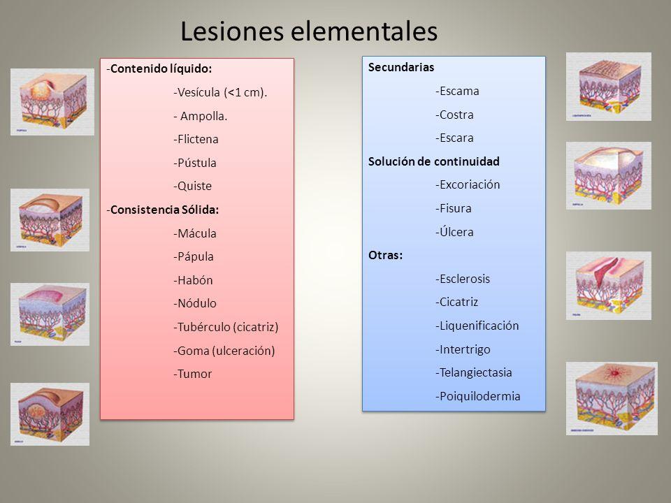 Lesiones elementales -Contenido líquido: -Vesícula (<1 cm). - Ampolla. -Flictena -Pústula -Quiste -Consistencia Sólida: -Mácula -Pápula -Habón -Nódulo