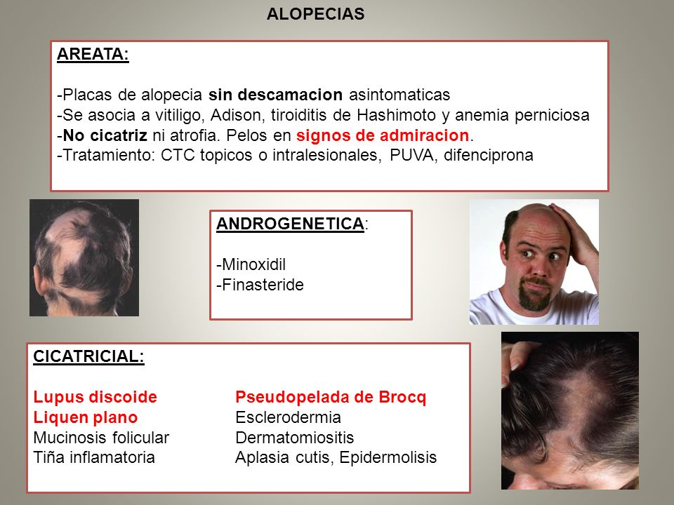 AREATA: -Placas de alopecia sin descamacion asintomaticas -Se asocia a vitiligo, Adison, tiroiditis de Hashimoto y anemia perniciosa -No cicatriz ni a