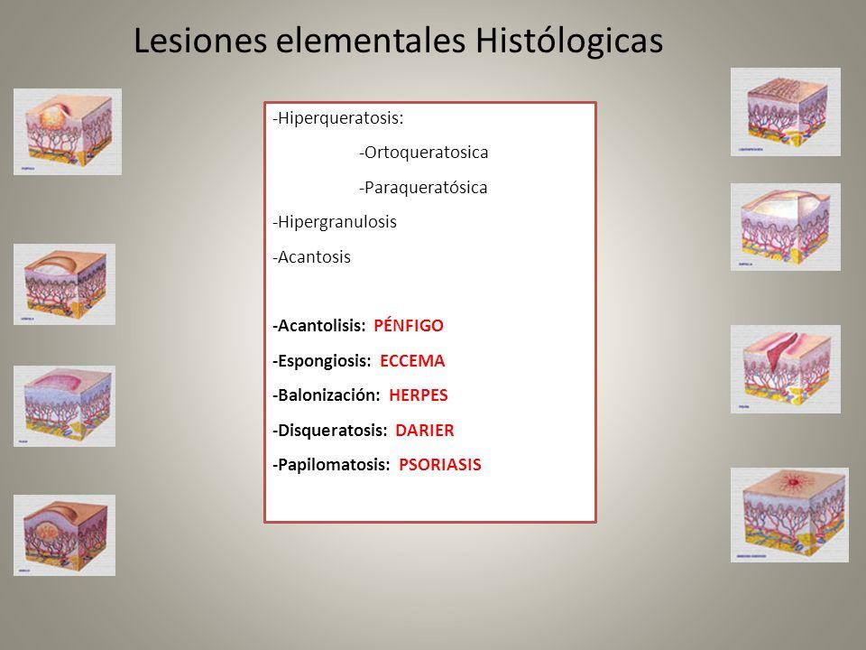 Lesiones elementales Histólogicas -Hiperqueratosis: -Ortoqueratosica -Paraqueratósica -Hipergranulosis -Acantosis -Acantolisis: PÉNFIGO -Espongiosis: