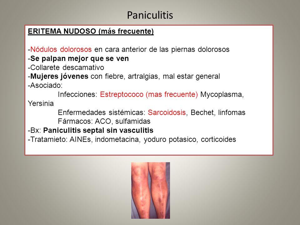 Paniculitis ERITEMA NUDOSO (más frecuente) -Nódulos dolorosos en cara anterior de las piernas dolorosos -Se palpan mejor que se ven -Collarete descama