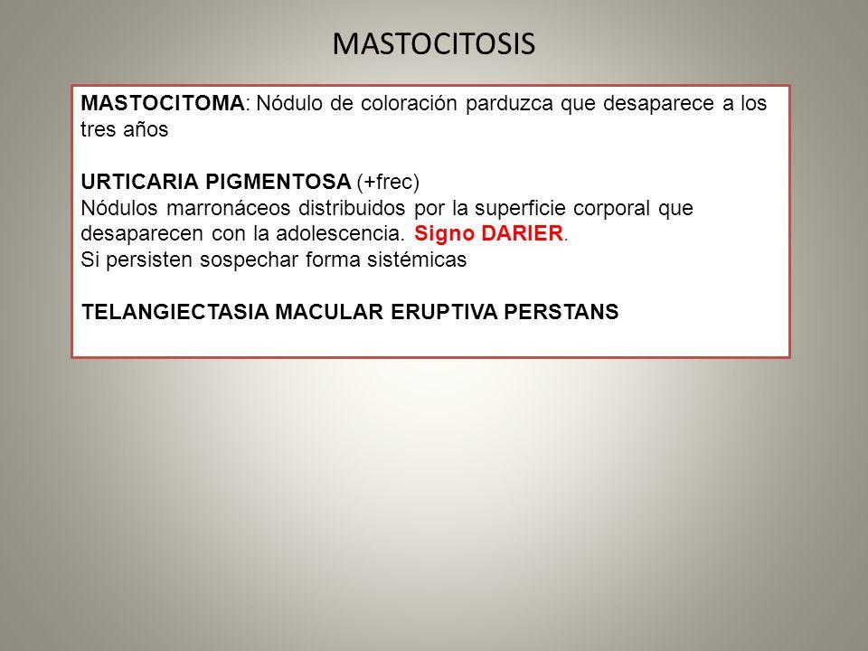 MASTOCITOSIS MASTOCITOMA: Nódulo de coloración parduzca que desaparece a los tres años URTICARIA PIGMENTOSA (+frec) Nódulos marronáceos distribuidos p