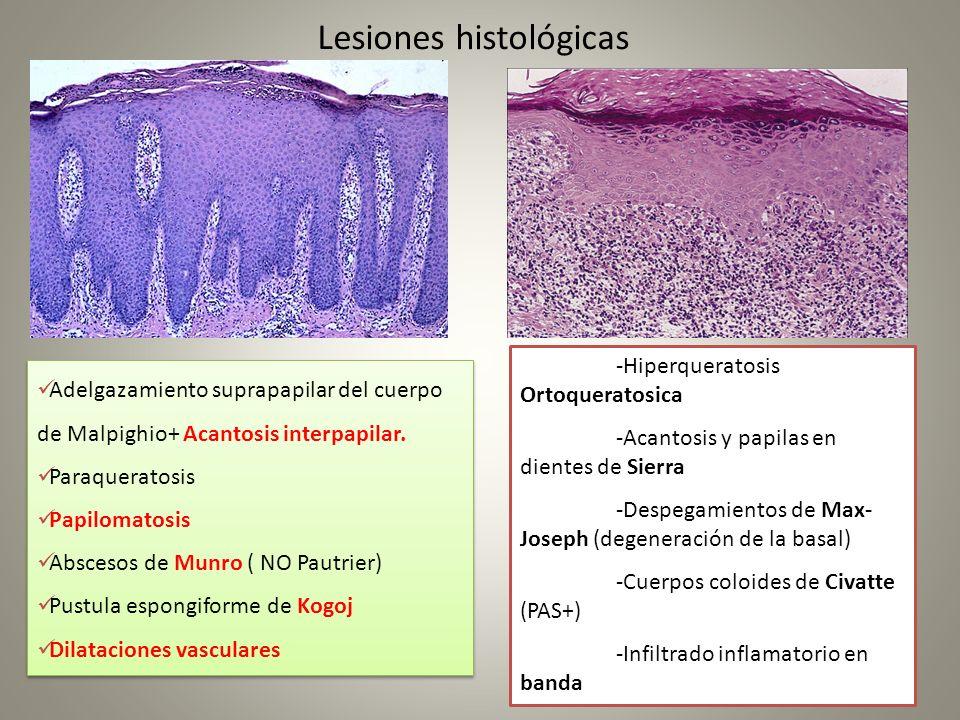 Lesiones histológicas Adelgazamiento suprapapilar del cuerpo de Malpighio+ Acantosis interpapilar. Paraqueratosis Papilomatosis Abscesos de Munro ( NO