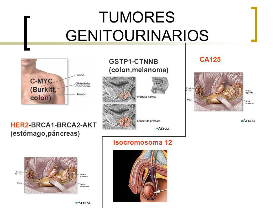 TUMORES GASTROINTESTINALES APC / MSH-MLH CODÓN 12 ONCOGÉN K-ras AKT (mama, ovario) C-MYC (Burkitt, mama) CA19.9 CEA ALFA-FP y DES- Carboxiprotrombina SD.