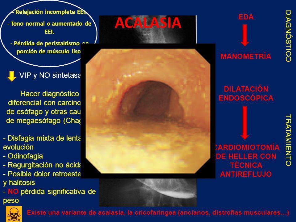ACALASIA - Relajación incompleta EEI. - Tono normal o aumentado de EEI. - Pérdida de peristaltlsmo en porción de músculo liso. VIP y NO sintetasa Hace