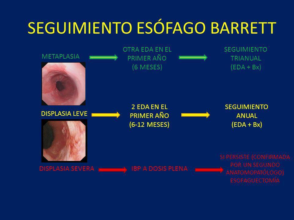 SEGUIMIENTO ESÓFAGO BARRETT METAPLASIA DISPLASIA LEVE DISPLASIA SEVERA OTRA EDA EN EL PRIMER AÑO (6 MESES) SEGUIMIENTO TRIANUAL (EDA + Bx) SEGUIMIENTO