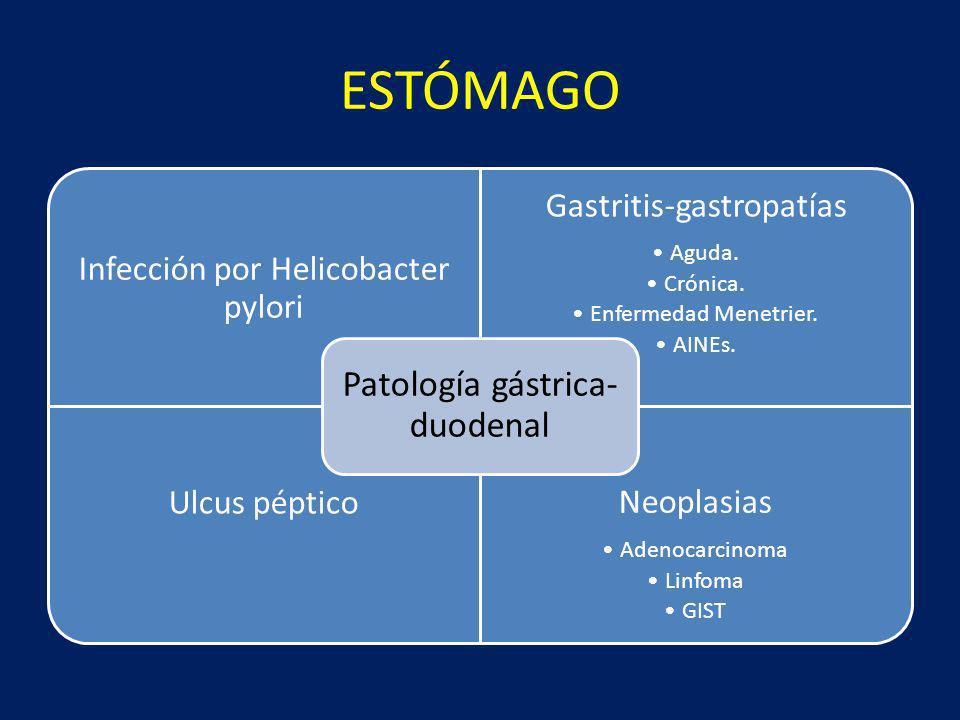 ESTÓMAGO Infección por Helicobacter pylori Gastritis-gastropatías Aguda. Crónica. Enfermedad Menetrier. AINEs. Ulcus péptico Neoplasias Adenocarcinoma