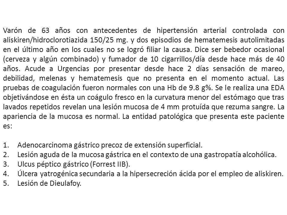 Varón de 63 años con antecedentes de hipertensión arterial controlada con aliskiren/hidroclorotiazida 150/25 mg. y dos episodios de hematemesis autoli