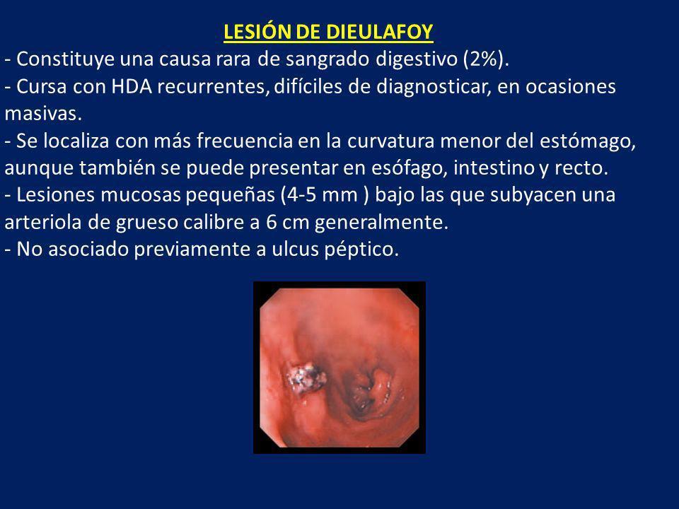 LESIÓN DE DIEULAFOY - Constituye una causa rara de sangrado digestivo (2%). - Cursa con HDA recurrentes, difíciles de diagnosticar, en ocasiones masiv